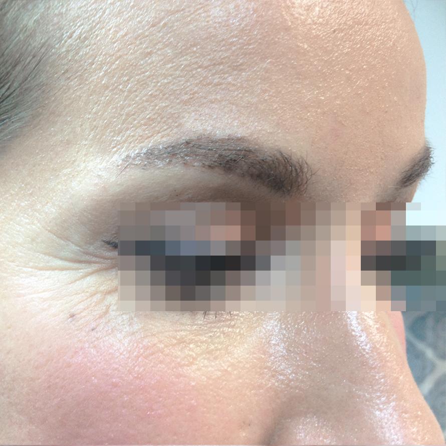Eyebrow Hair Transplants Melbourne Hair Transplant Clinic