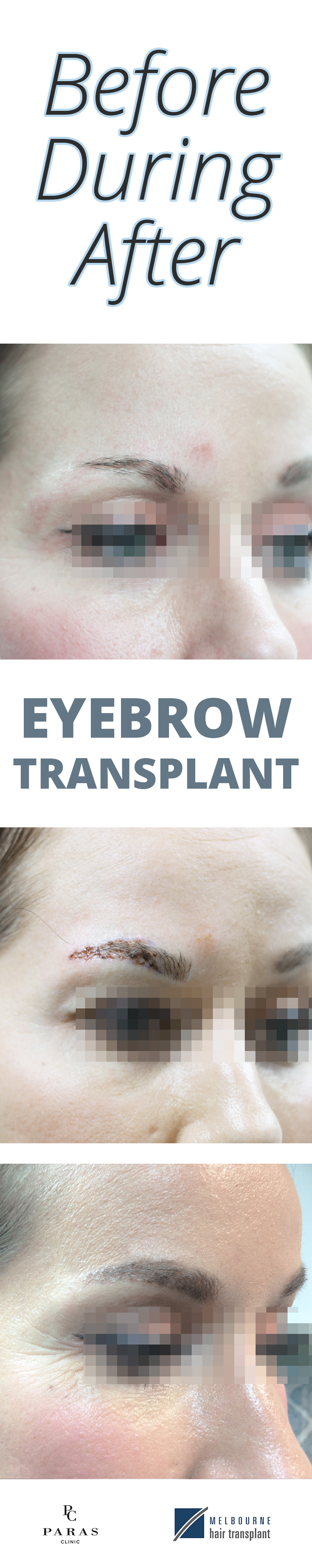 eyebrow transplant pin